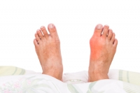 Foot Exercises for Bunion Prevention