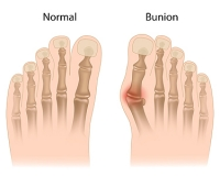 What Caused My Bunion?