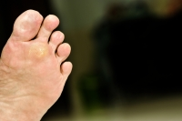 Preventing Plantar Warts