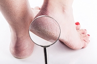 Are Cracked Heels Painful?